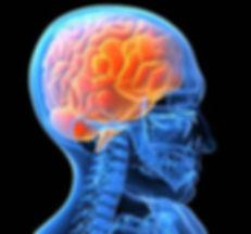 neuro2.jpg