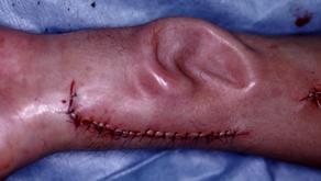 その2 形成外科と再生医療