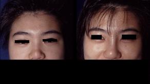 その1 なぜ美容外科の広告だらけなのか。