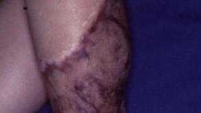 その20 女性の下腿外傷の形成美容外科的再建。