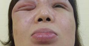 その14 美容外科手術の実際―後遺症、とくに顔面のフィラー注入でシコリを形成した場合の処置