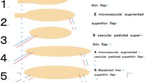 その11 熱傷による頸部顔面の瘢痕拘縮治療には超薄皮弁―完全二重血管付加超薄皮弁への発展
