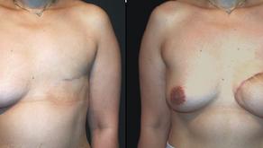 その15  癌摘除手術のあとの再建――1.乳房再建