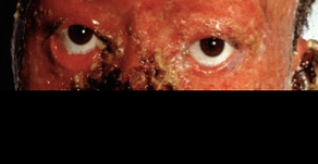 その15 顔面熱傷の形成外科的治療について