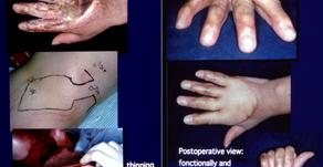 その19 超薄皮弁の遠隔移植で手背の瘢痕拘縮を再建する。