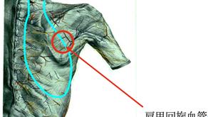 その9 熱傷による頸部顔面の瘢痕拘縮治療には超薄皮弁―マイクロサージャリーの付加で次々と開発