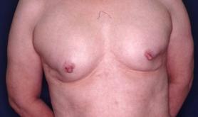 その15  豊胸術術後障害の乳房再建術