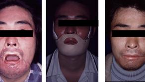 その1:熱傷後瘢痕の圧迫療法