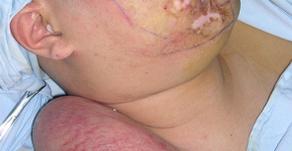 その13 熱傷による頸部顔面の瘢痕拘縮治療には超薄皮弁―エクスパンダの応用