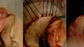 その3:ケロイドの術後電子線照射療法の有効性を初めて確認した症例。