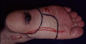 その11 皮膚癌・肉腫とその形成再建手術――メラノーマから
