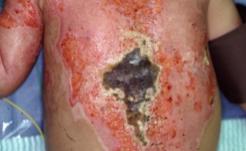 その17 小児熱傷の形成外科的治療について