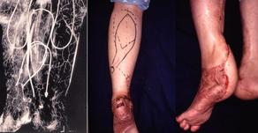 その18 下肢の形成再建外科-2.遠位茎腓腹皮弁による下腿・足の再建