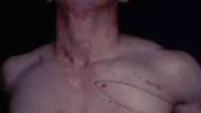 その14 熱傷による頸部顔面の瘢痕拘縮治療には超薄皮弁―さらなる穿通枝利用の可能性