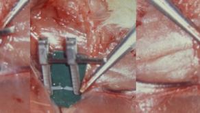 その10 マイクロサージャリーが可能にした形成再建手術