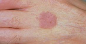 その14 皮膚癌・肉腫とその形成再建手術―今回は表皮内癌