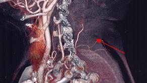 その20 SCAP(浅頸動脈穿通枝)皮弁による熱傷瘢痕拘縮再建とその応用
