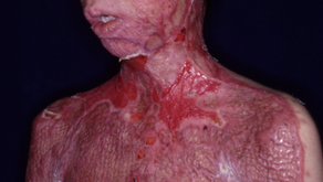 その12 熱傷による頸部顔面の瘢痕拘縮治療には超薄皮弁―有茎+微小血管二重付加によるギネスブックものの薄く大きな超薄皮弁の成功