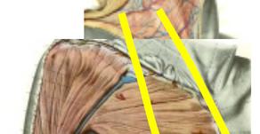その10 熱傷による頸部顔面の瘢痕拘縮治療には超薄皮弁―背中からだけでなく胸からも