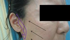 その13 美容外科手術の実際―簡便なフェイスリフト:百束式ミニリフトの実際