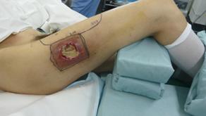 その17 下肢の形成再建外科-1.穿通枝軸プロペラ皮弁法の適用