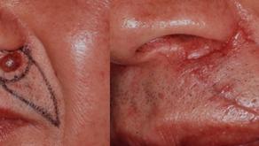 その13 皮膚癌・肉腫とその形成再建手術―今回は基底細胞癌