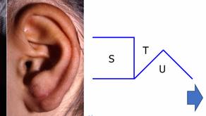 その5 関節部瘢痕拘縮形成の革命―正方弁法