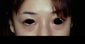 その11 美容外科手術の実際―下眼瞼除皺術(たるみ取り)