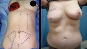 その4 インプラントを使用しない乳房再建についての考察。
