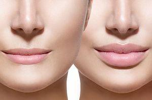 Lippen Vergrösserung