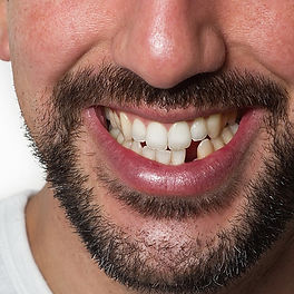 Missing-Teeth-new-BANNER-1900x800_edited