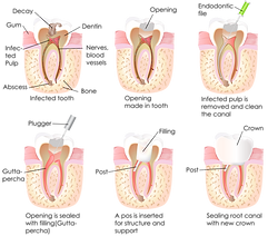 willow-pass-dental-care-root-canal-proce