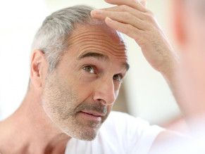 The psychological impact of hair thinning