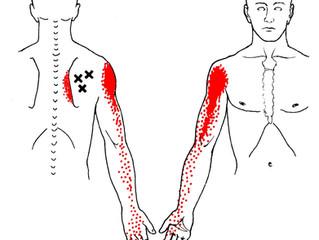 Triggerpunkt i Infraspinatus- En av de vanligste årsakene til skuldersmerter