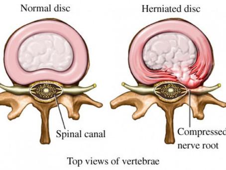 Sciatica. What a pain in the bum!