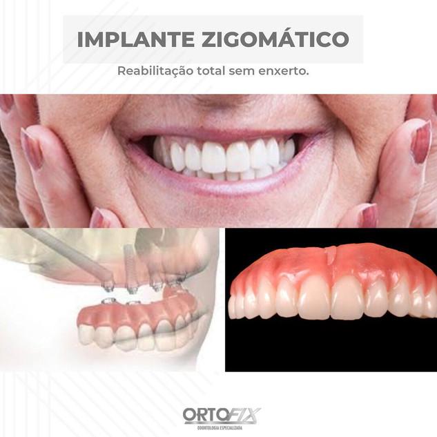 ortofixoficial_101442764_930970447344508