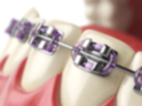 Fixed Orthodontic treatments, braces, Dentist , Australia , Orthodontist , Faraz, nonel dental , Sydney , Strathfield , New town , Enmore , clear , smile,