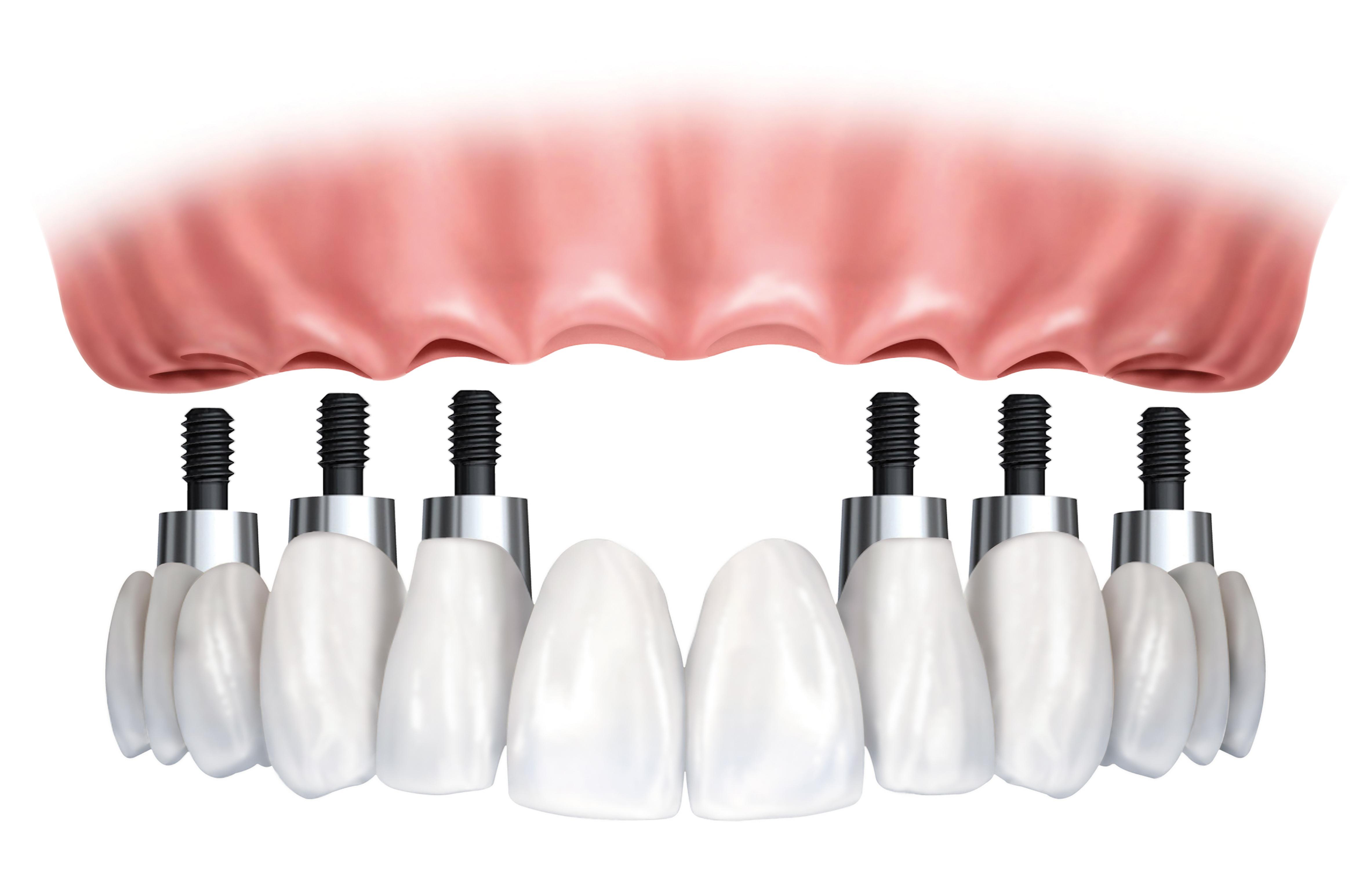 Premier Implants