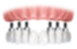 Implants , Full mouth rehabilitation , Dr Faraz Hedayat Seresht , Dr. Faraz , all on 4 , implant , sedation , same day , Sydney, Armidale , Gosford , denture , over denture , guided surgery , enmore , digital , seresht , surgery , Persian , affordable , premier , quality , usa , Australia , iran