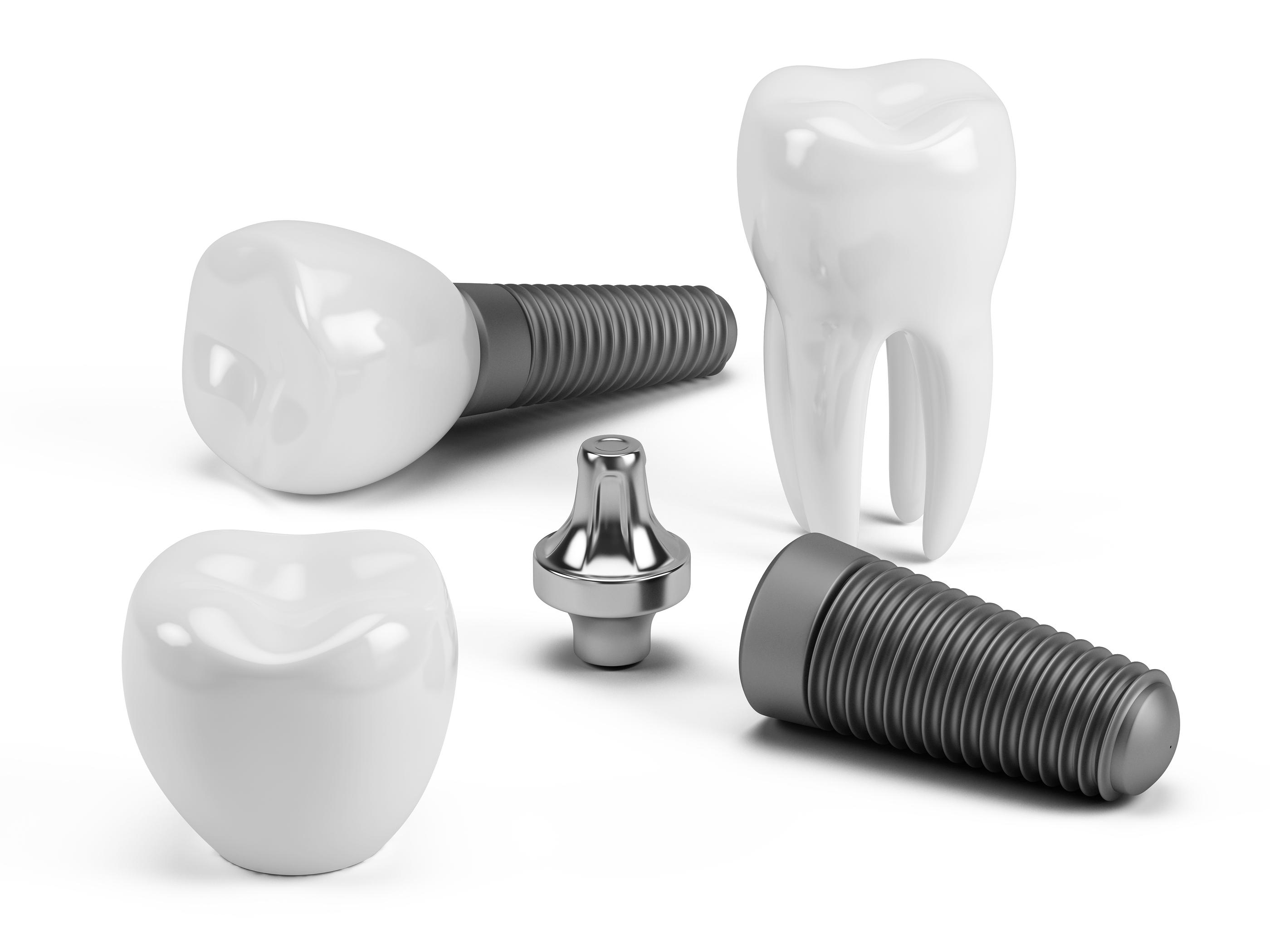Sydney Dental Implants