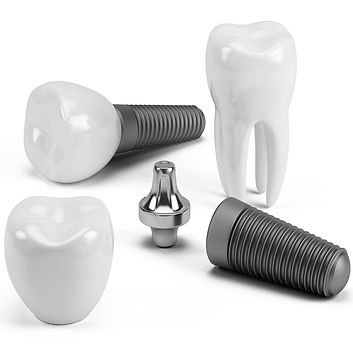 Frequently Asked Questions , FAQs ,Book online our free Dental Implant and all on 4 consultation , affordable, special offer, unbeatable price , Dr.Faraz , Persian Dentist , Sydney , Strathfield , High quality , American made