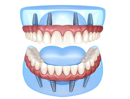 Book online our free Dental Implant and all on 4 consultation , affordable, special offer, unbeatable price , Dr.Faraz , Persian Dentist , Sydney , Strathfield , High quality , American made