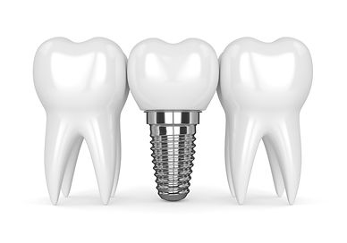 Single Implant , Book online our free Dental Implant and all on 4 consultation , affordable, special offer, unbeatable price , Dr.Faraz , Persian Dentist , Sydney , Strathfield , High quality , American made