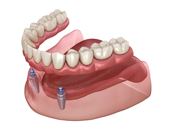 Overdenture , Book online our free Dental Implant and all on 4 consultation , affordable, special offer, unbeatable price , Dr.Faraz , Persian Dentist , Sydney , Strathfield , High quality , American made