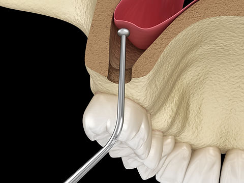 Sinus Lift Surgery , Book online our free Dental Implant and all on 4 consultation , affordable, special offer, unbeatable price , Dr.Faraz , Persian Dentist , Sydney , Strathfield , High quality , American made