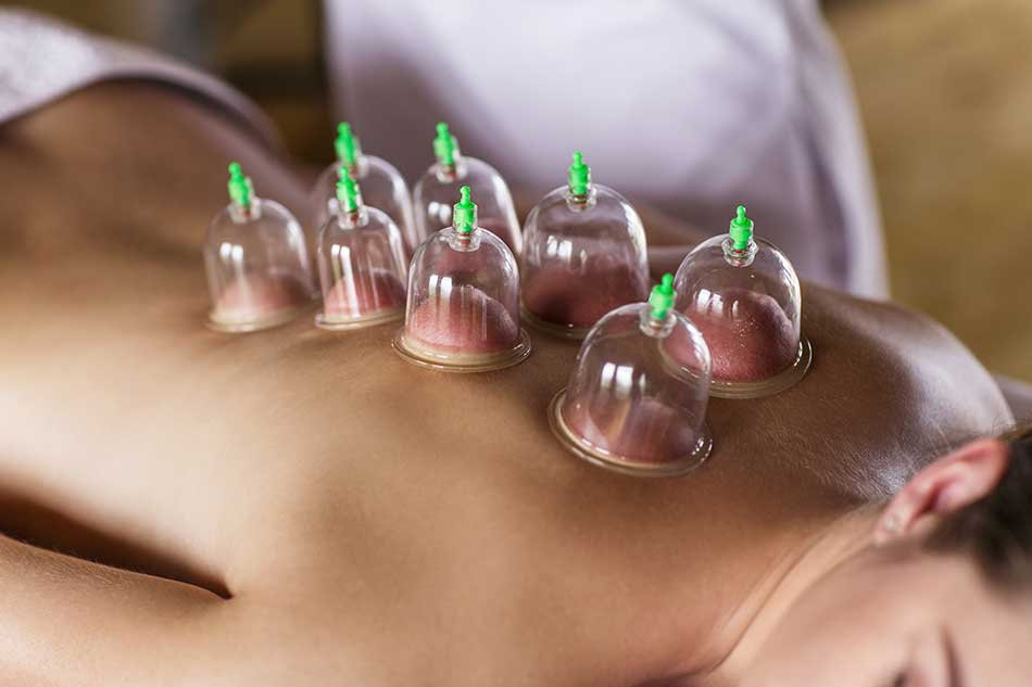 30 Minute Body Cupping