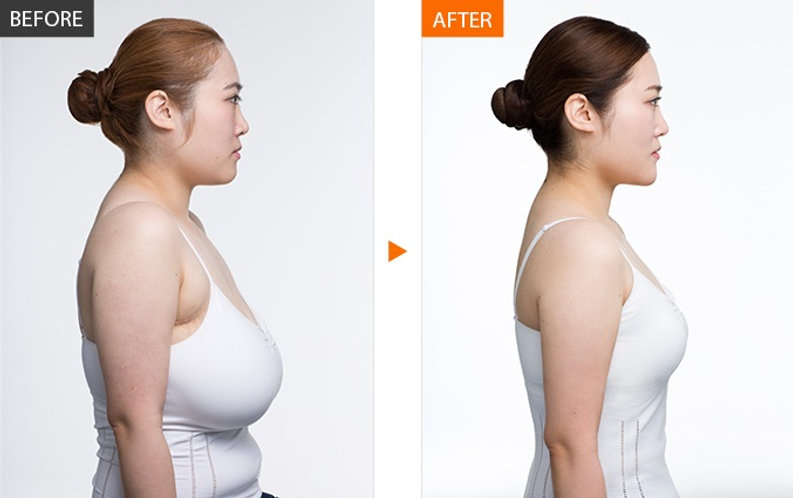 Breast-Reduction-Cost-in-India.jpg