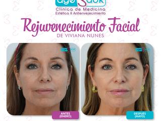 ✨ Rejuvenecimiento Facial de Viviana Nunes ✨