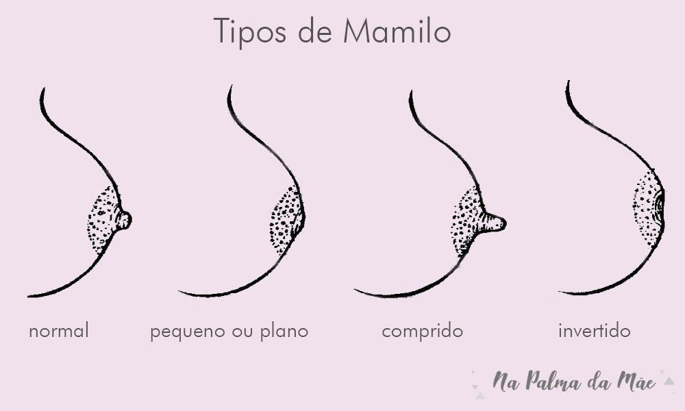 Tipos de mamilo e bicos amamentação