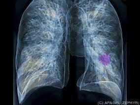 Dieta com alto IG pode aumentar o risco de câncer de pulmão